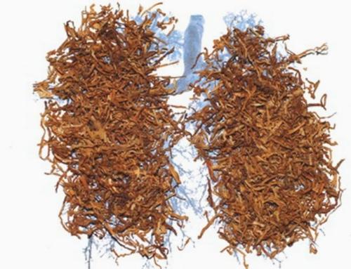 Remedii naturiste contra intoxicatiei cu tutun