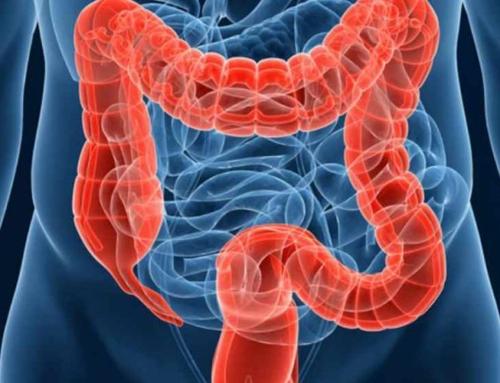 Semnele si factorii declansatori ai cancerului de colon